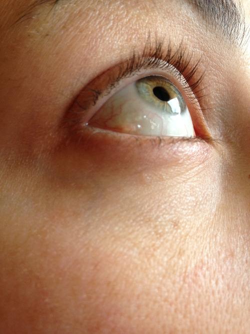 cisti bianca occhio